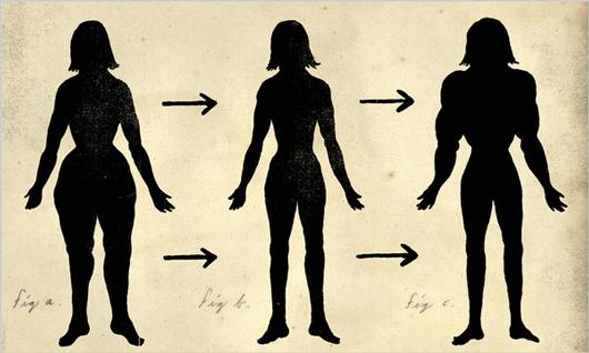 Распределение жира до и после липосакции