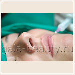 Увеличение объема губ гелем гиалуроновой кислоты